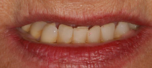 all-on-4 dental implants - patient 11 - before 1