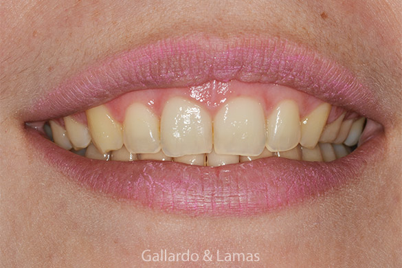gummy smile correction - patient 4 - before 1