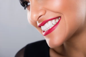 How Long Do Dental Implants Last?